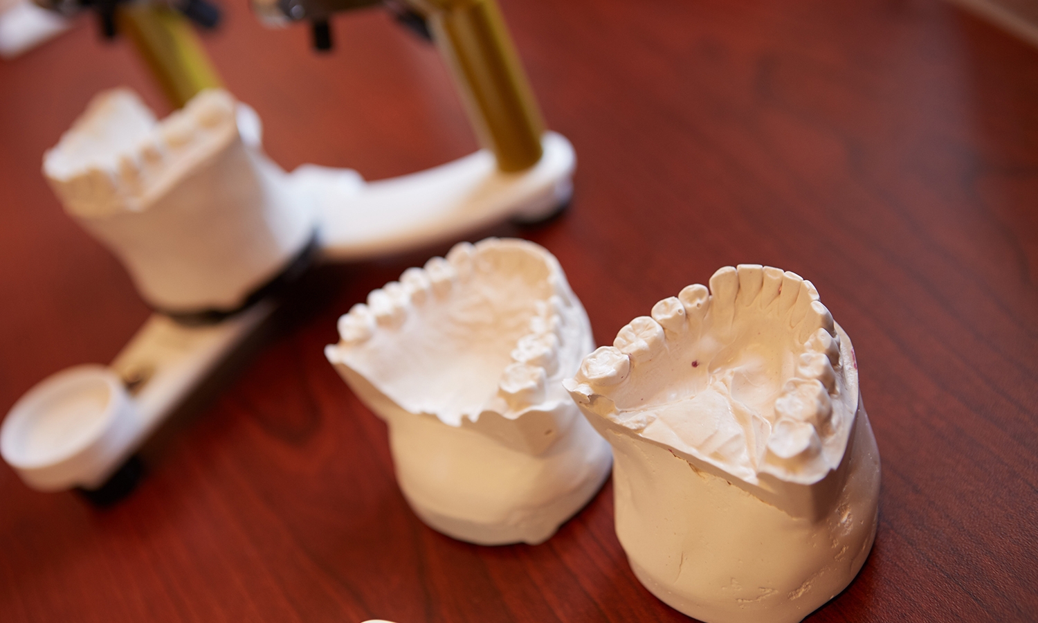 Dental impressions in Grandville MI at Klein Dentistry - KleinDentistry.com