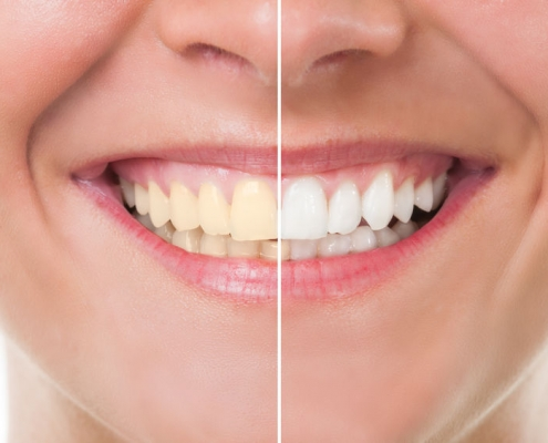 Professional teeth whitening at Klein Dentistry in Grandville MI