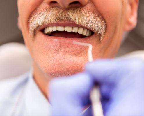 The Different Types of Dentures - Klein Dentistry, Grandville MI